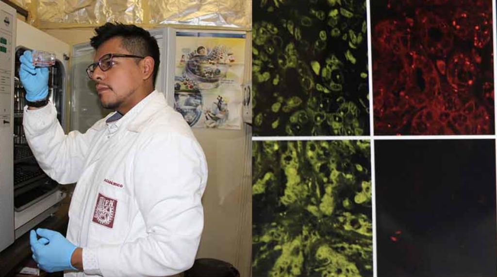 Descubre IPN biomarcador para posible detección temprana de cáncer de mama triple negativo Foto: IPN
