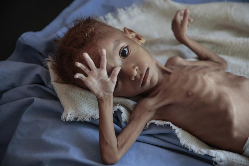 Yemen: Usan privación de alimentos como arma de guerra Foto: AP